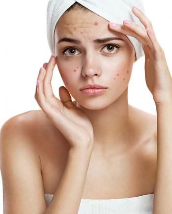 Recuperación post-acné